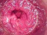 Pink rectum Dec-13-2018