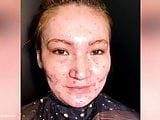 Women with very bad acne